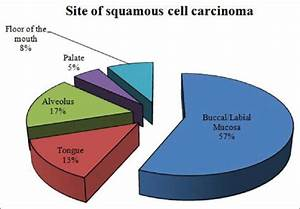 Diagram Showing The Site Of Oral Squamous Cell Carcinoma
