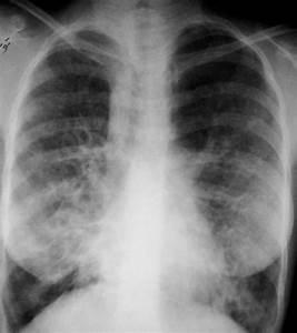 Bronchiectasis | Image | Radiopaedia.org