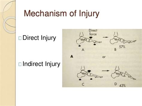 Lisfranc injuries are generally high speed injuries which may develop into serious deformities of the midfoot mechanism of injury. Lisfranc injury