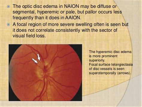 Anterior Ischemic Optic Neuropathy