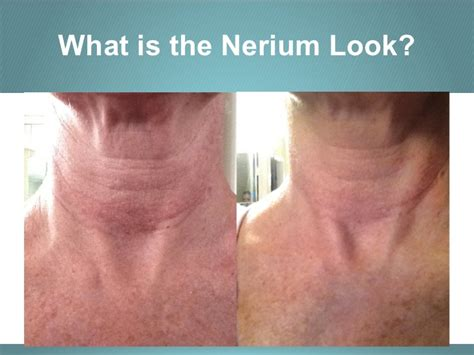 Nerium Business Opportunity Presentation. Best Culinary Schools In California. Ca Workers Compensation Insurance. The Cheapest Motorcycle Insurance. Nutrition For School Age Children. 2001 Chevy Silverado Mpg Master In Technology. Toll Free Number Finder Voip Codec Comparison. Oakland University Accelerated Nursing. University Of Tennessee Nursing