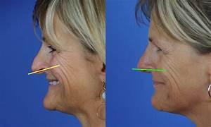 Droopy Nasal Tip Correction