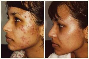 15 Shocking Microdermabrasion Before and After Pictures