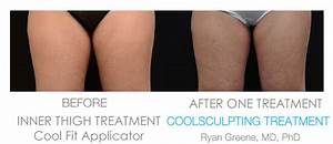 Coolsculpting Inner Thighs – What You Need To Do - Health ...