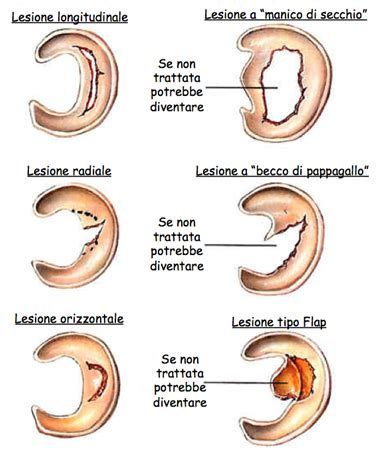 Lesione Corno Posteriore Menisco Interno Lesione Menisco Mediale E Laterale Diagnosi Cura E