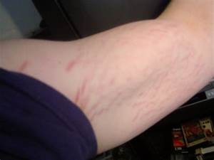 Stretch Marks Dont look away!!! - Bodybuilding.com Forums