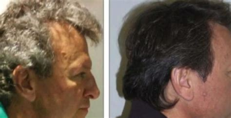 To Brown Turned Grey by Side Effect Of New Cancer Turns Grey Hair Brown In
