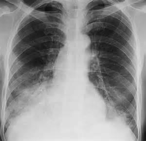... pneumonia. Causes, symptoms, treatment Hydrocarbon pneumonia Pneumonia