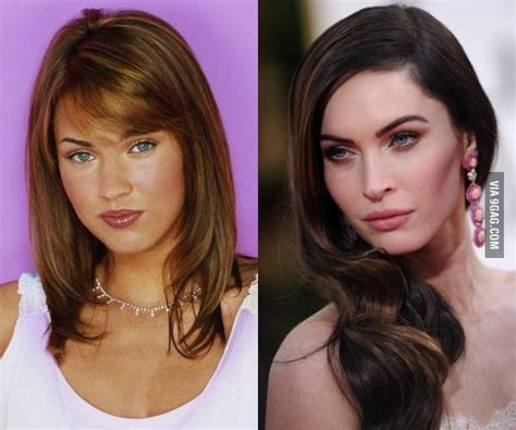 Megan Fox before/after plastic surgery. # ...