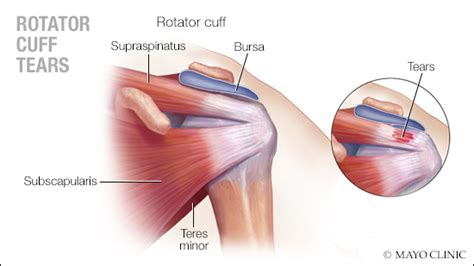 Treating Rotator Cuff Tears