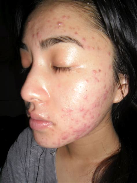 How To Keep Skin Clear From Acne