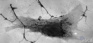 Pre-Medicine Program - Cell Filament Systems - CellBiology