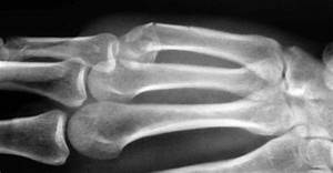 Common hand fractures