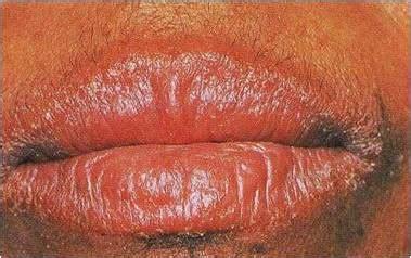 simply beautilicious lip care   lips