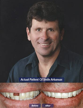 dental bridges   rock ar dentures smile arkansas