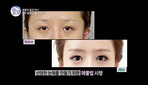 Before And After: Korean Twins Get Drastic Plastic Surgery ...