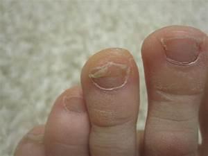 Чем вылечить на ноге палец грибок