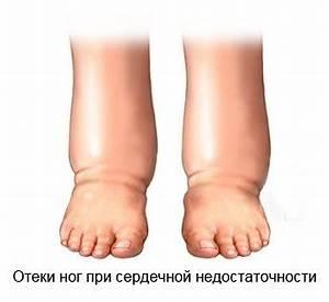 Опухли ноги при псориазе