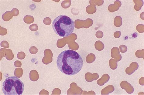 Hematology Pictures at Kent State Tuscarawas - StudyBlue