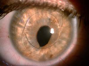 When The Lens Implant Is Placed Behind The Cornea And In Front Of The