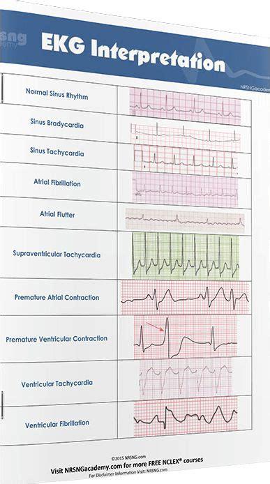 most nurses have to interpret ekg rhythms every day our