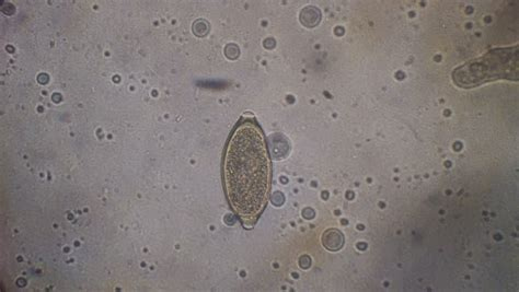 veterinarian   roundworm egg toxocara canis