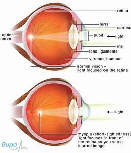Myopia  Causes  Symptoms  Treatment Myopia