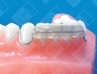 spring hawley retainer ul teeth movement dental tools
