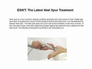 Eswt  The Latest Heel Spur Treatment