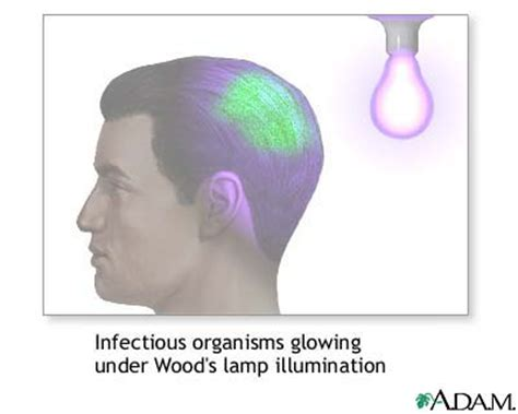 wood l examination diagnosis wood s l examination causes symptoms treatment wood