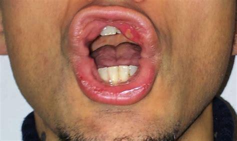 interno bocca valigetta trucco come si cura un afta in bocca
