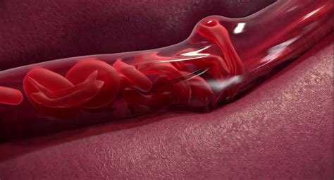 Voxelotor An Investigational Drug for Sickle Cell Disease ...
