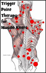 18 Best Muscle Stimulator Placement Images On Pinterest
