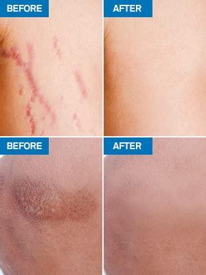Amazon.com : Aroamas Advanced Scar Gel Medical-Grade