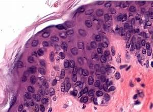 Stratified Squamous Epithelium Keratinized Skin