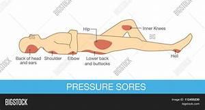 Pressure Sores Area Vector  U0026 Photo
