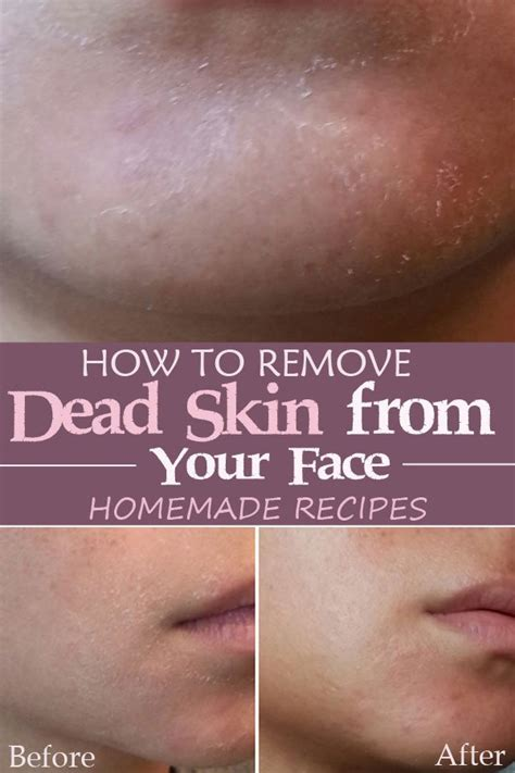 skin dead face remove care tricks beauty rid most peeling enhance genius impressive hacks daily allforfashiondesign natural step helps