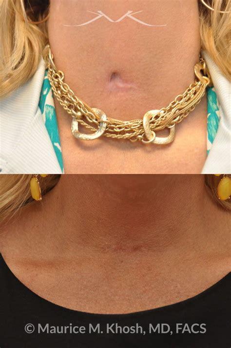 york facial plastic surgery scar revision laceration