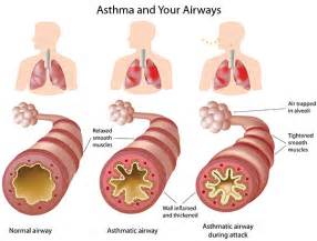 Asthma - Information For Parents - Halton Region Asthma