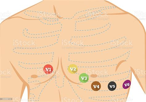 Chest Ecg Leads Placement Illustration Stock Illustration