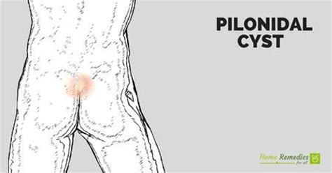 pilonidal cyst home remes for inflamed pilonidal cyst homemade ftempo