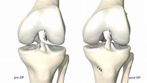 Diagram Of Torn Acl : torn acl symtoms treatment surgery recovery time ~ A.2002-acura-tl-radio.info Haus und Dekorationen