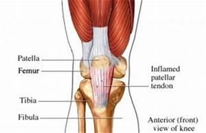 Pijn in kuit en knieholte