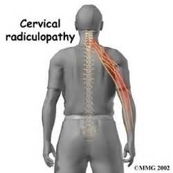 cervical_radiculopathy_intro01.jpg Cervical Radiculopathy