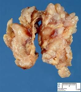 plexiform neurofibroma - Humpath.com - Human pathology