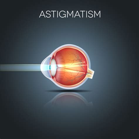 Appeared first on manhattan lasik center. Astigmatism And Lasik - Astigmatism Glaucoma Swollen Eyes Disease