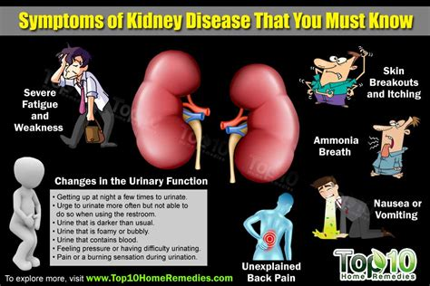 Top 10 Symptoms Of Kidney Disease That You Need To Know. Web Based Construction Software. Stock Market Research Papers. Town And Country Lumberton Nc. Malpractice Attorney Orange County. Post Production Scheduling Software. Thyroid Biopsy Inconclusive Donia Syrian Tv. Affordable Dental Clinics Mysql 5 5 Download. Internet Protection Services