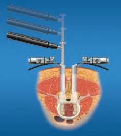 Minimally Invasive Lumbar Fusion Surgery