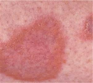 Diabetic Dermopathy  More Than Just Dry Skin   U2013 Diabetes Daily