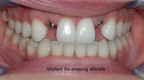 anterior dental implants dental implants